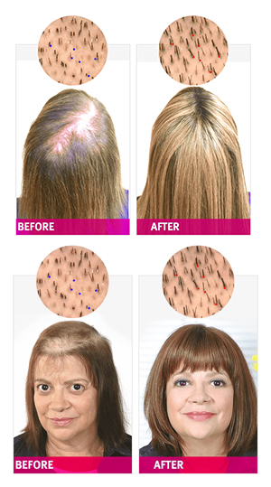 Folicell Hair Regrowth